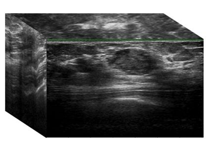 Early Ultrasound Detection Of Breast Cancer Department Of Image